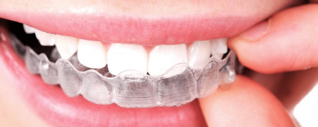 La Dentisterie cosmétique