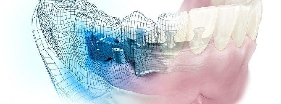La CFAO dentaire (CAD-CAM)